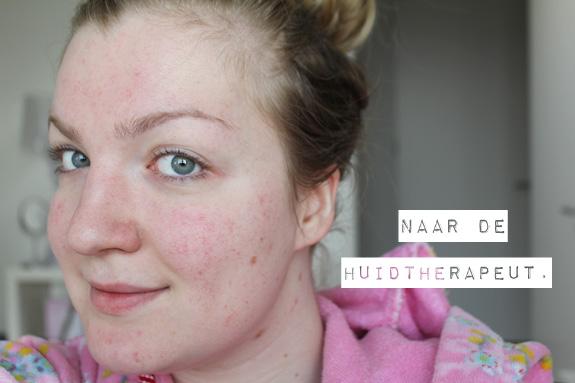 naar_de_huidtherapeut01